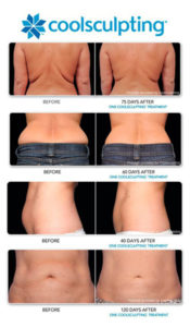 coolsculpting-page-b-a