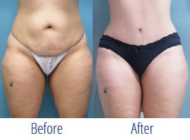 Cosmetic Plastic Surgery Before And After Miami Doral