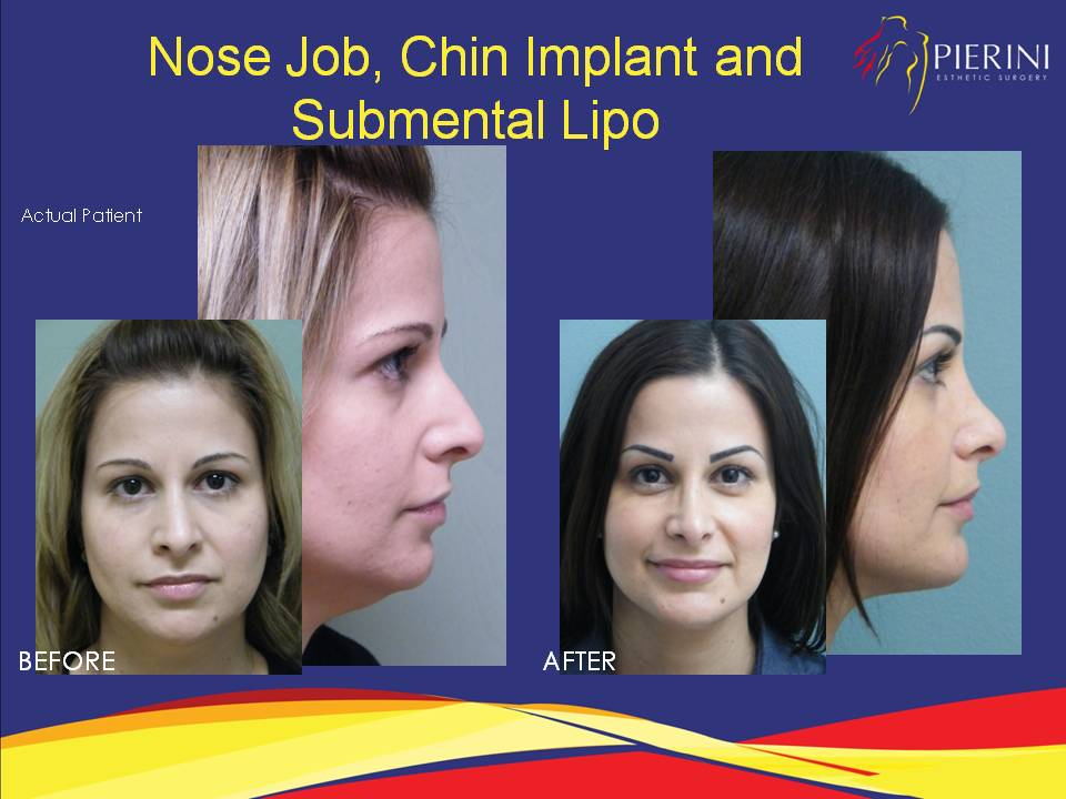 Chin Implant Before and After Miami